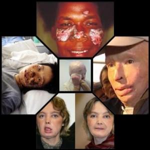 Différentes photos de personnes brûlées.